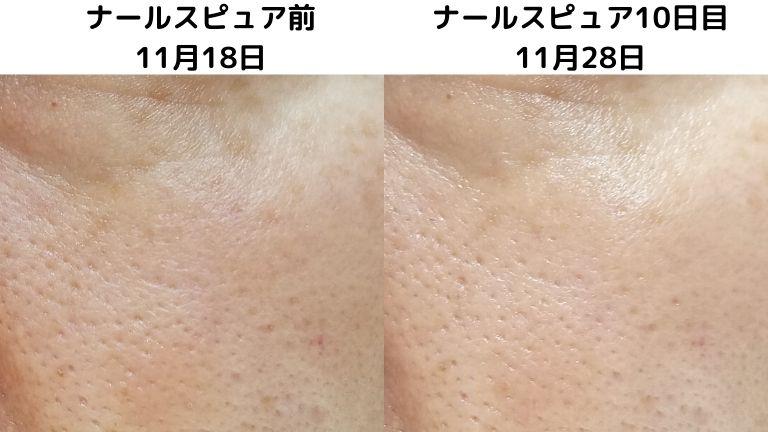 ナールスピュア10日目11月28日毛穴写真