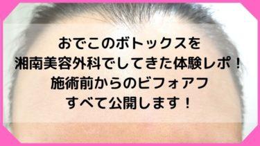 おでこのボトックスを湘南美容外科でしてきた体験レポ!施術前からのビフォアフ公開します!