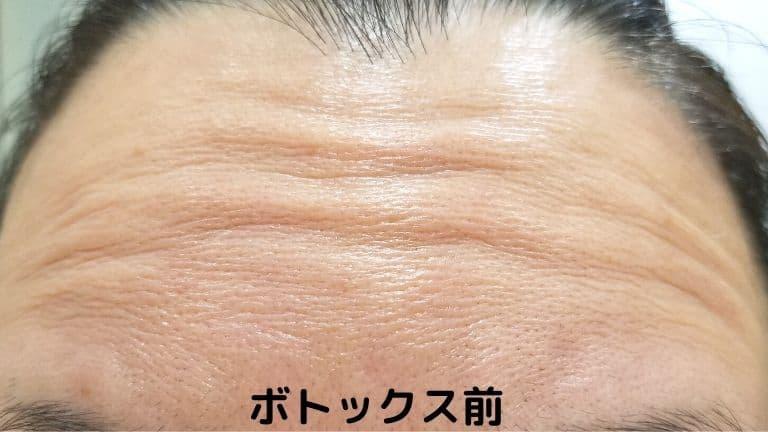 湘南美容外科のボトックス前 おでこ(1)