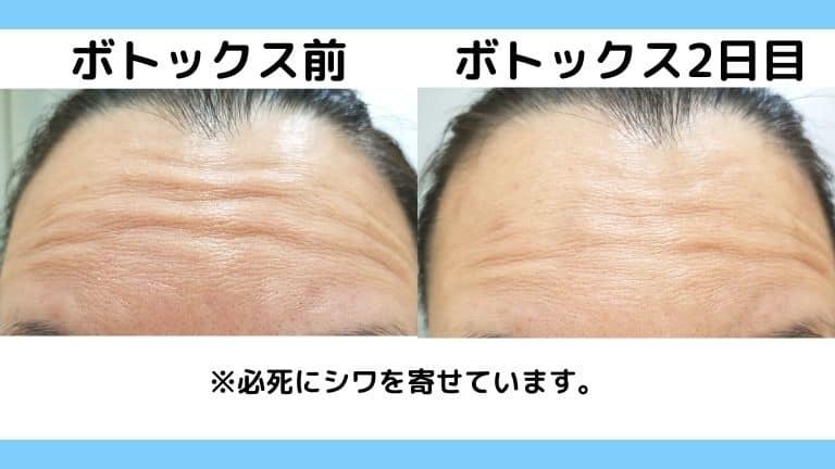 湘南美容外科のボトックス2日目 (1)