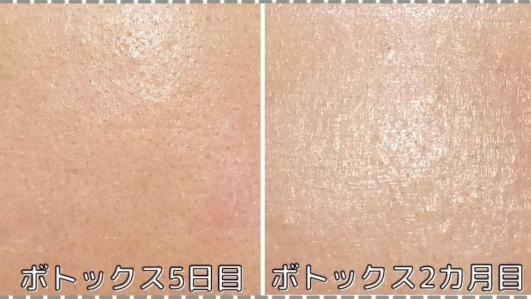 湘南おでこボトックス2カ月の変化 (1)