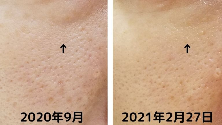 品川美容外科コラーゲンピールとパール美肌小じわ (1)