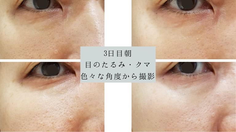 品川美容外科コラーゲンピールとパール美肌の効果