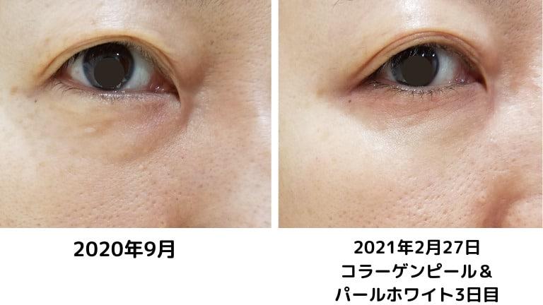 品川美容外科コラーゲンピールとパール美肌の変化