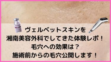 ヴェルベットスキンを湘南美容外科でしてきた体験レポ!毛穴への効果は?施術前からのビフォアフ公開します!