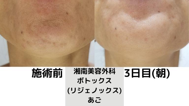 湘南美容外科 ボトックス (リジェノックス) あご3日目