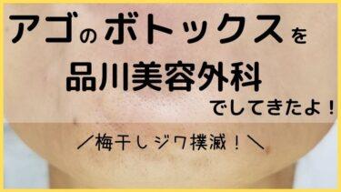 アゴのボトックスを品川美容外科でしてきた体験レポ!写真で経過を公開します!
