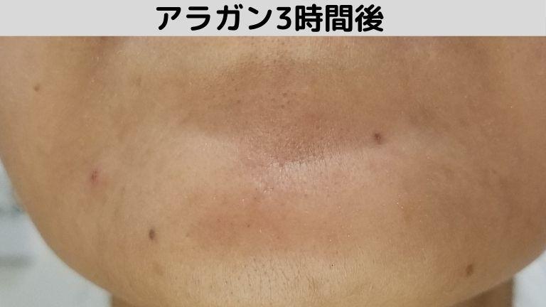 品川美容外科アラガンボトックスアゴ3時間後 (1)