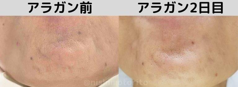 品川美容外科アラガンボトックス2日目あご