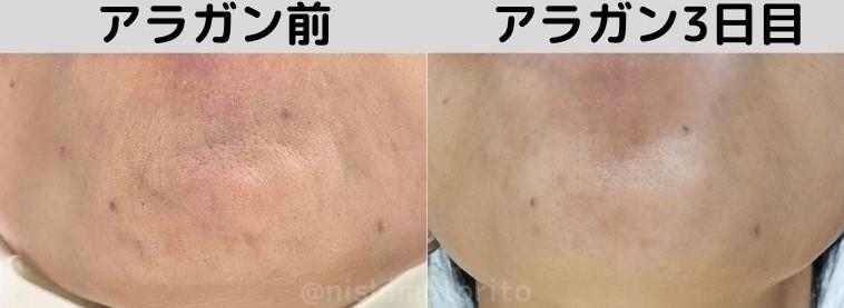 品川美容外科アラガンボトックス3日目あご