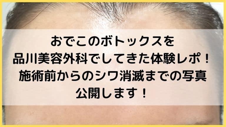 品川美容外科ボトックス口コミアイキャッチ