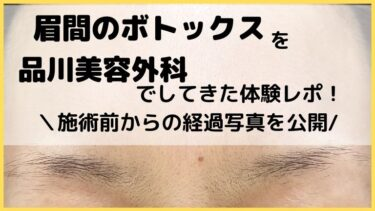 眉間のボトックスを品川美容外科でしてきた体験レポ!施術前からのシワ消滅までの写真公開します!
