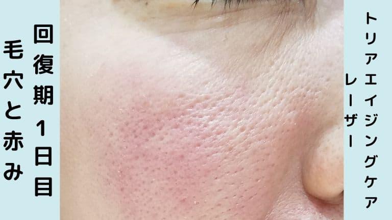 トリア美顔器回復期1日目毛穴