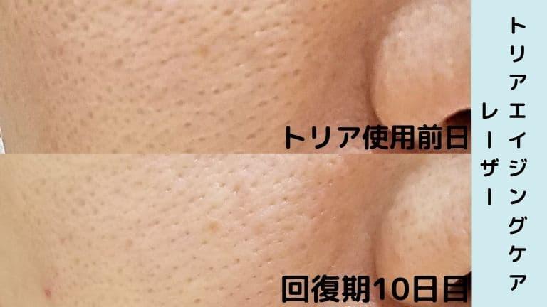 トリア美顔器回復期10日目毛穴