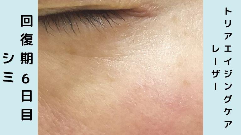 トリア美顔器回復期6日目シミ