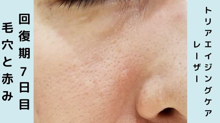 トリア美顔器回復期7日目毛穴