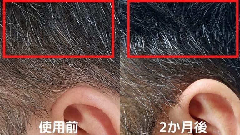 白髪を黒髪にヘアクロウビフォアフ (2)